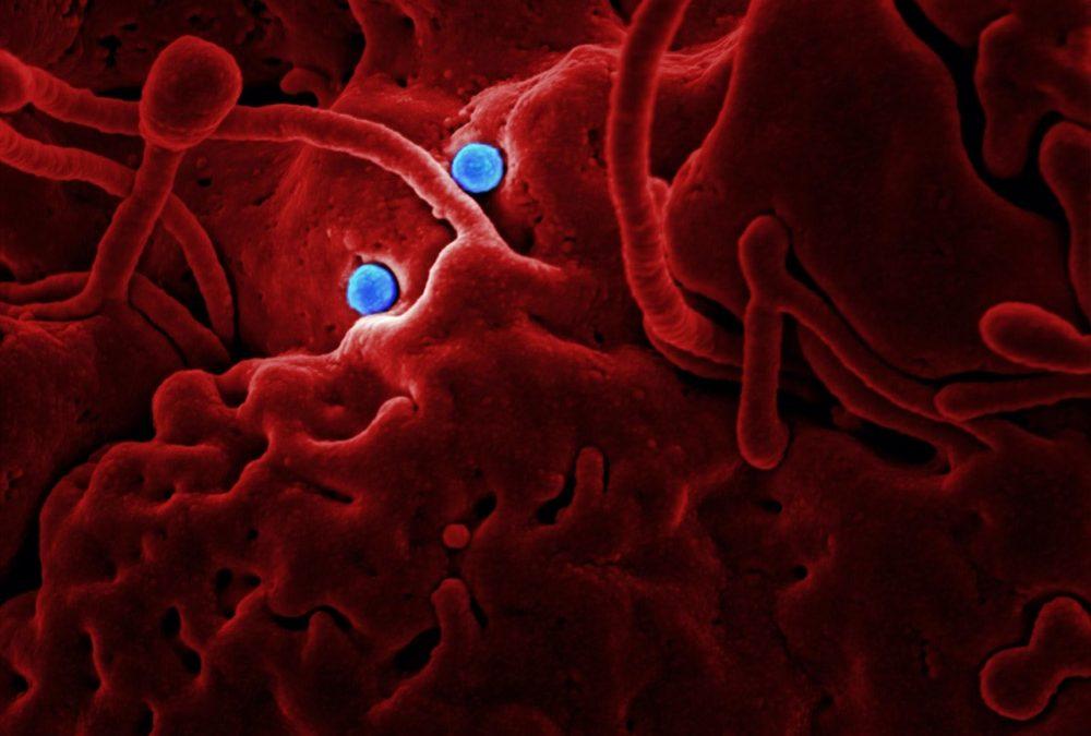 Coronavirus : quel impact à Orléans ?